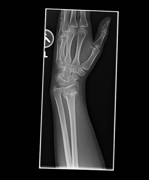 TCO-XRays-600w--6 PreOp Wrist