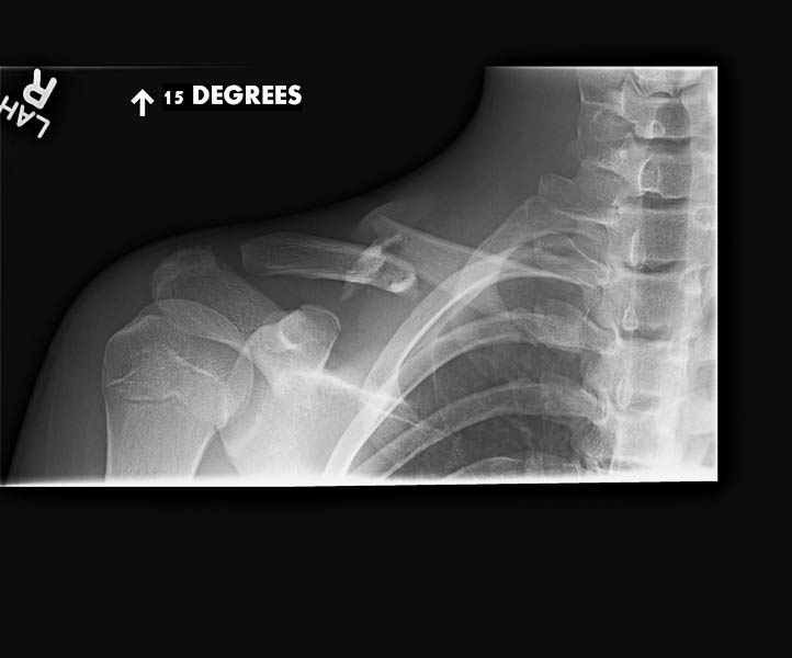 TCO-XRays-600w--8 Pre Op Clavicle Fracture